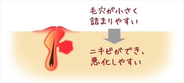 顎ニキビは毛穴が小さく詰まりやすいことが原因